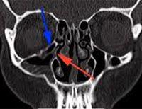 Вылечить остеоартроз