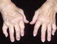 Лечение артрита суставов в сибири как разработать сустав после травмы народными средствами
