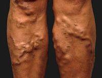 Чем опасна варикозная болезнь нижних конечностей.